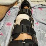 Нога после операции